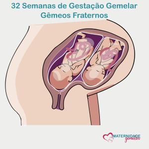 gestação gemelar - 32 semanas
