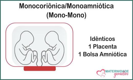monocoriônica monoamniótica